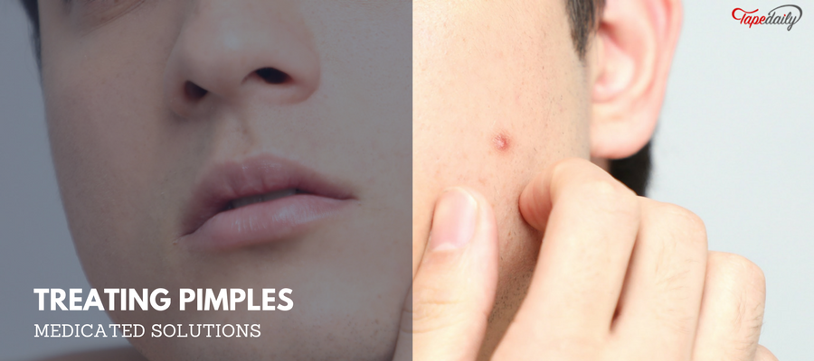 Herbal solutions for pimples