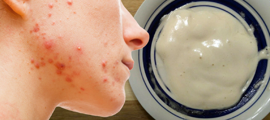 Curing acne with baking soda face mask
