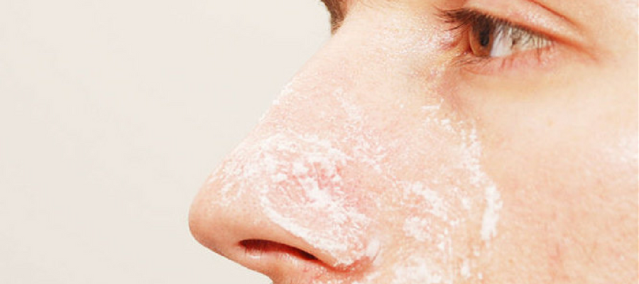 Using baking soda to remove blackheads