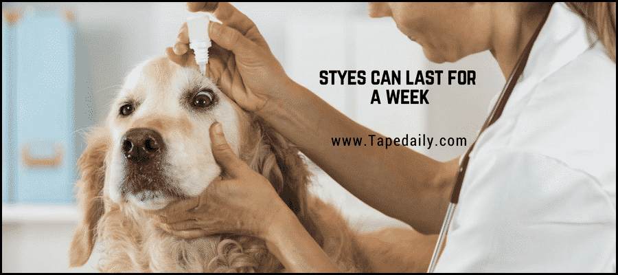 Styes Can last for a week