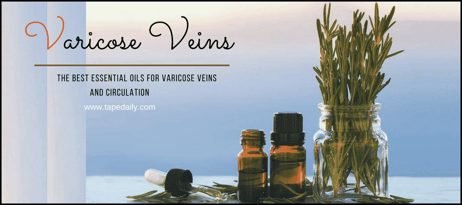 The Best Essential Oils For Varicose Veins And Circulation