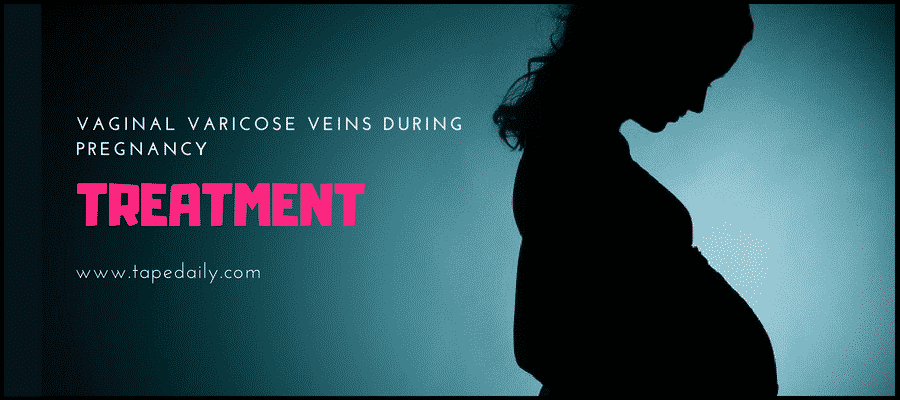 Vaginal varicose veins treatment