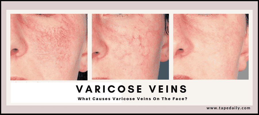 What Causes Varicose Veins On The Face