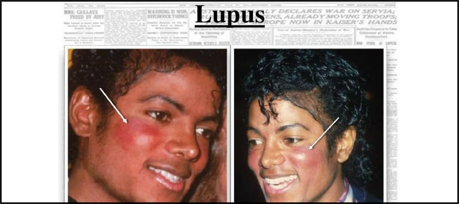 Michael Jackson with lupus