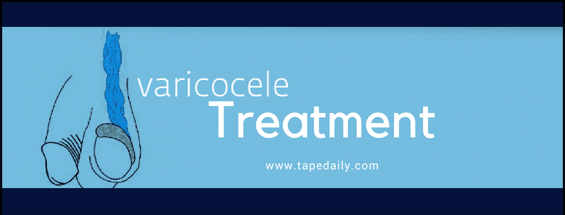 Varicoceletreatment