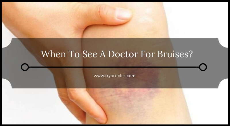 When To See A Doctor For Bruises