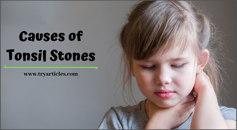 what causes tonsil stones