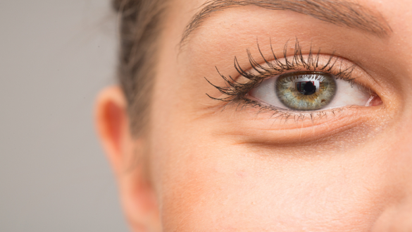 How To Get Rid Of Bags Under Eyes Quickest Method