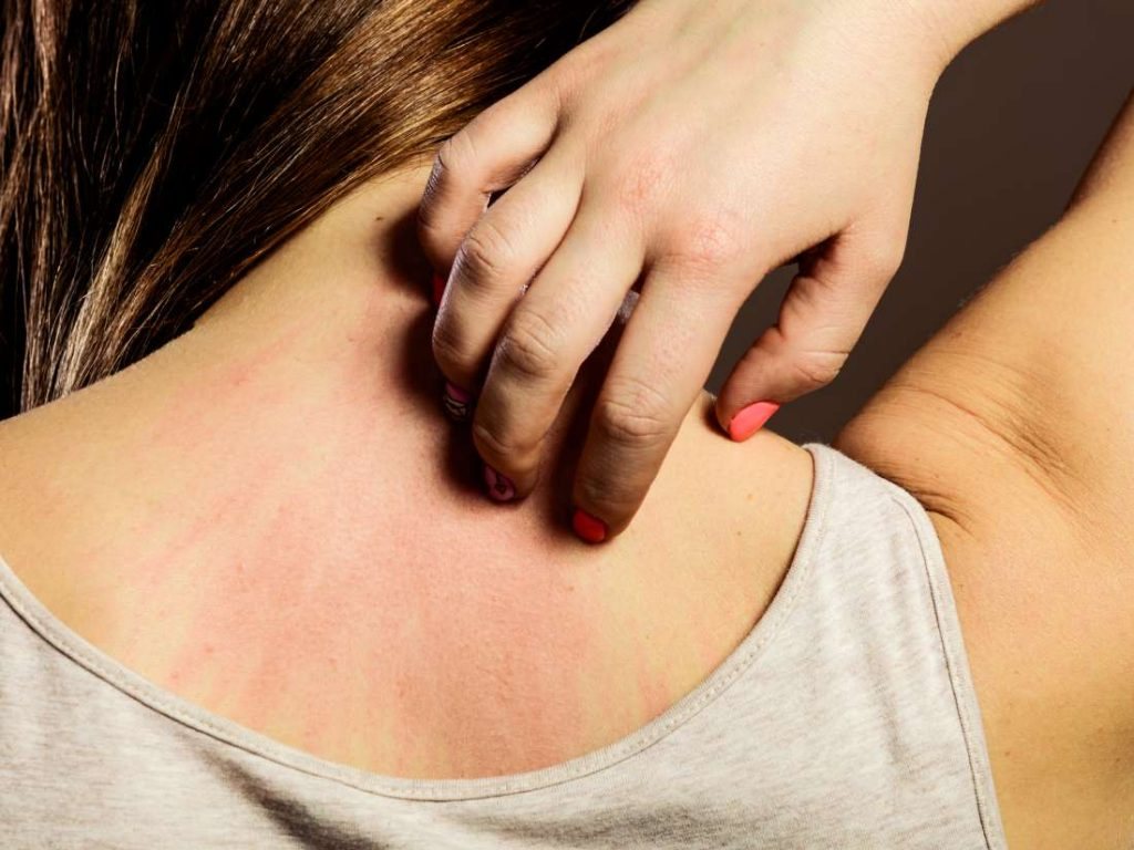 Skin allergies and sensitivity